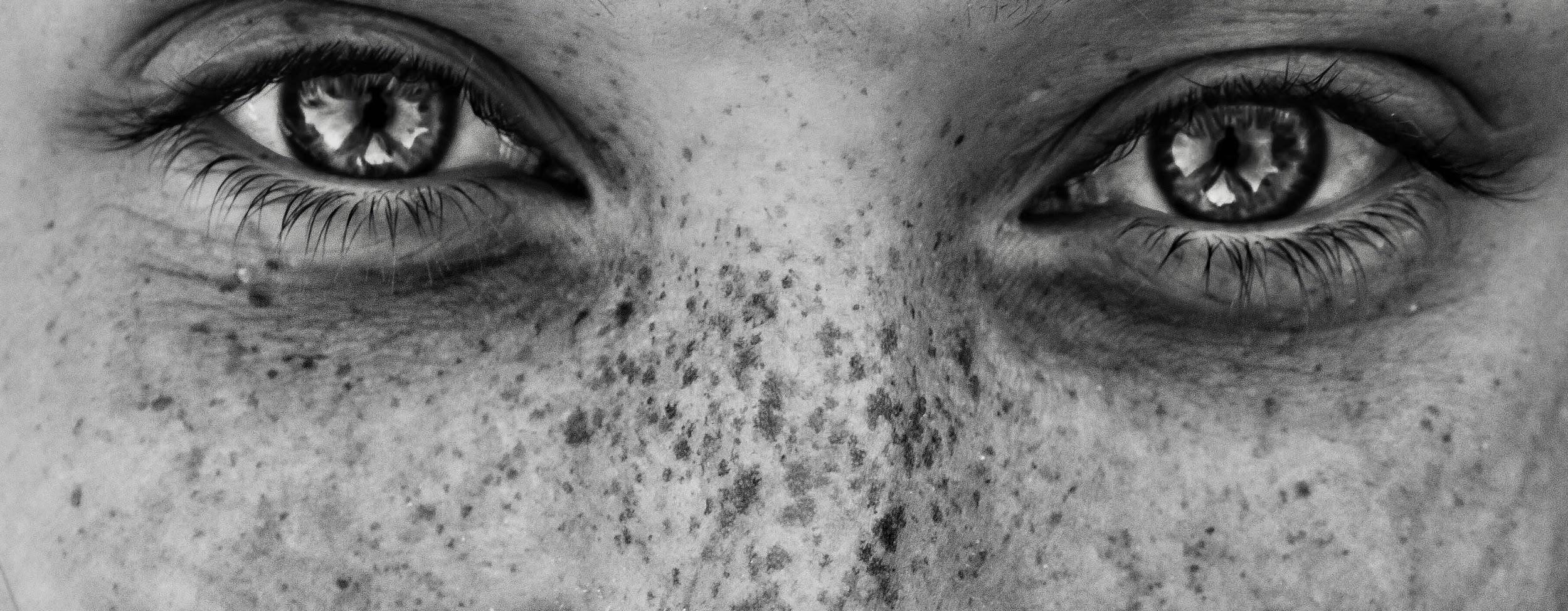 les points noirs sur le nez